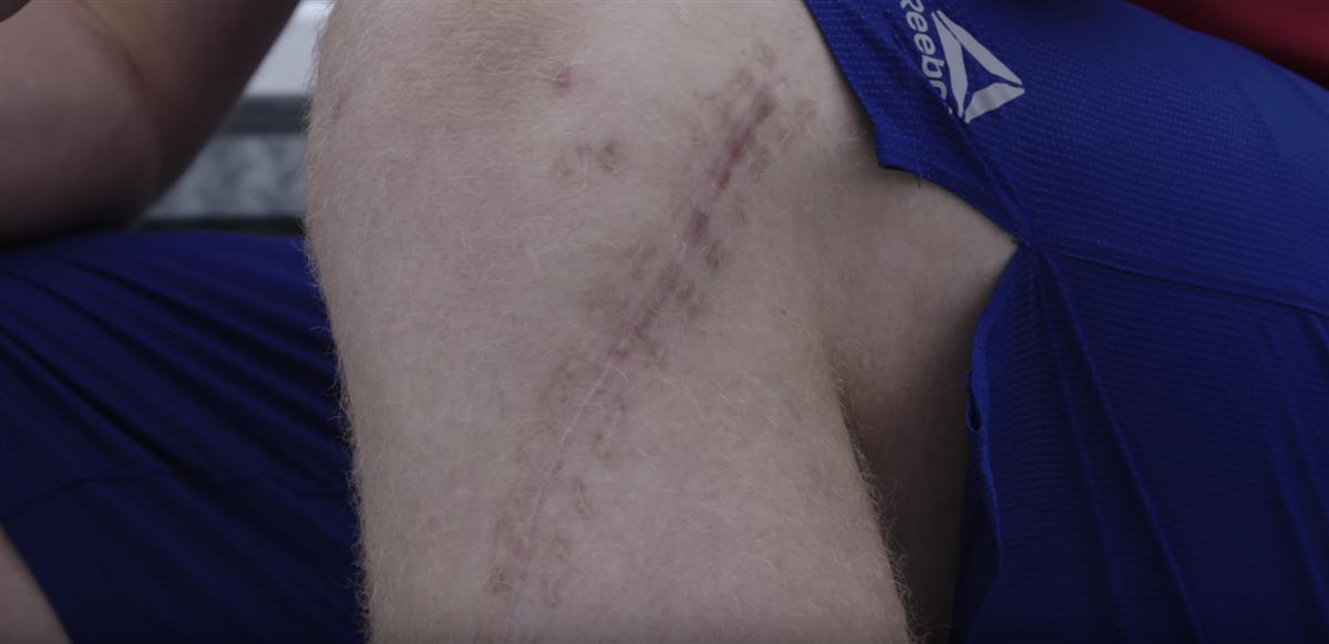 J.J. Watt shows knee scar in ad for new Reebok shoe